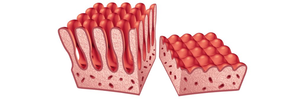 Illustration of damage to the intestinal villi.